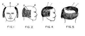 Comb-over patent images